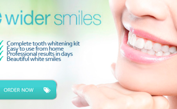 Wider Smiles Teeth Whitening -1